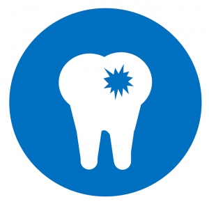 Reasons for Dental Bone Graft